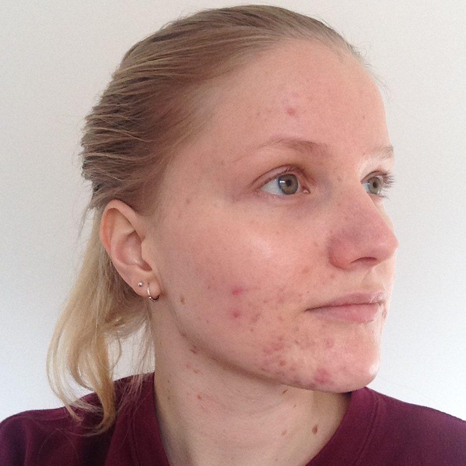 beste middel tegen acne